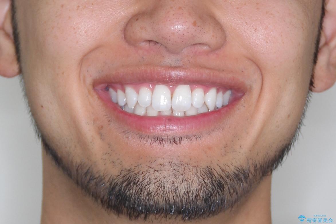 【インビザライン】笑った時の歯並びを綺麗にしたいの治療前(顔貌)