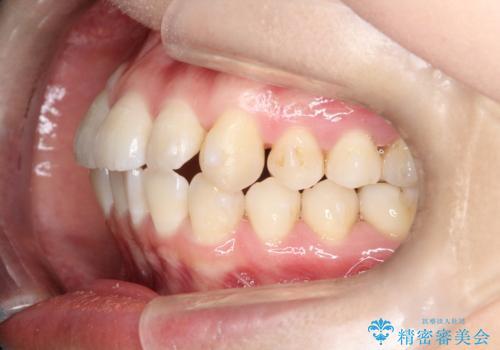 【インビザライン】前歯の凸凹をなおしたいの治療中