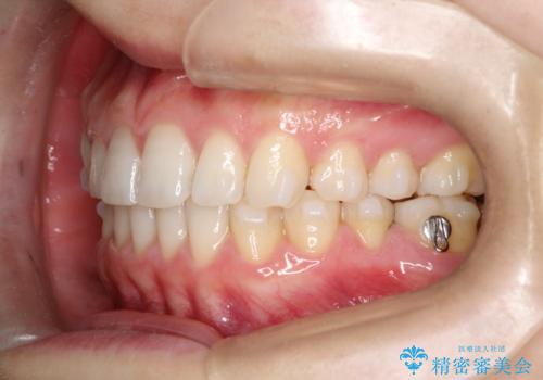 【インビザライン】前歯のガタガタを綺麗にしたい。の治療中