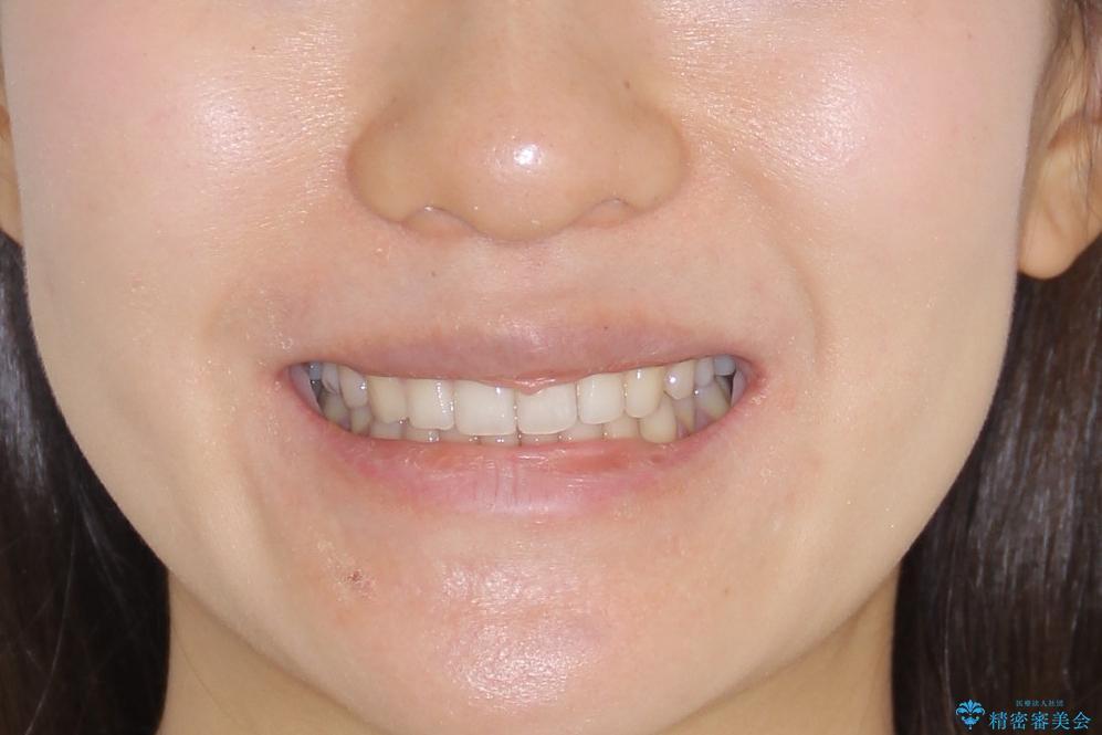 【インビザライン】前歯のガタガタを綺麗にしたい。の治療後(顔貌)