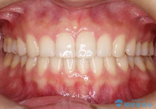 【インビザライン】前歯のガタガタを綺麗にしたい。の治療後