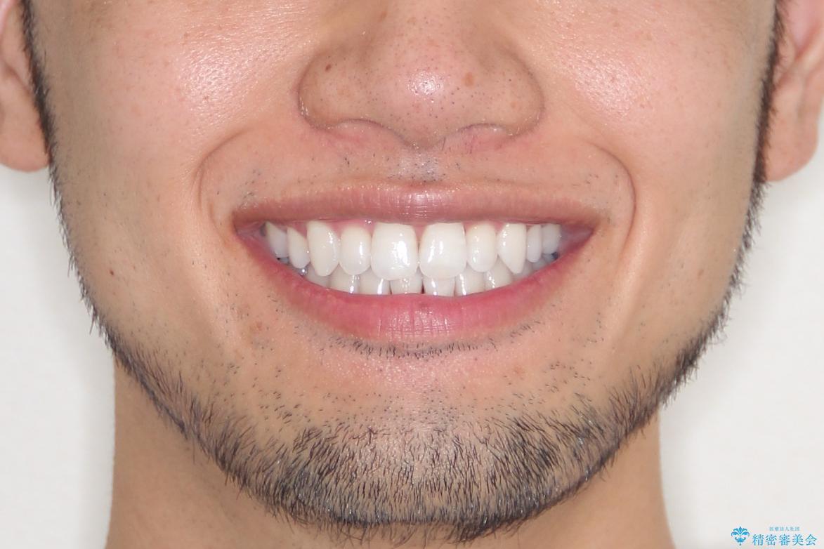 【インビザライン】笑った時の歯並びを綺麗にしたいの治療後(顔貌)