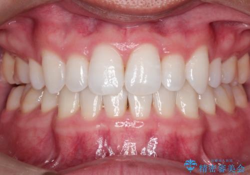 【インビザライン】笑った時の歯並びを綺麗にしたいの治療後
