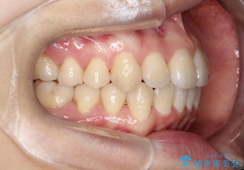 【インビザライン】前歯の凸凹をなおしたいの治療後