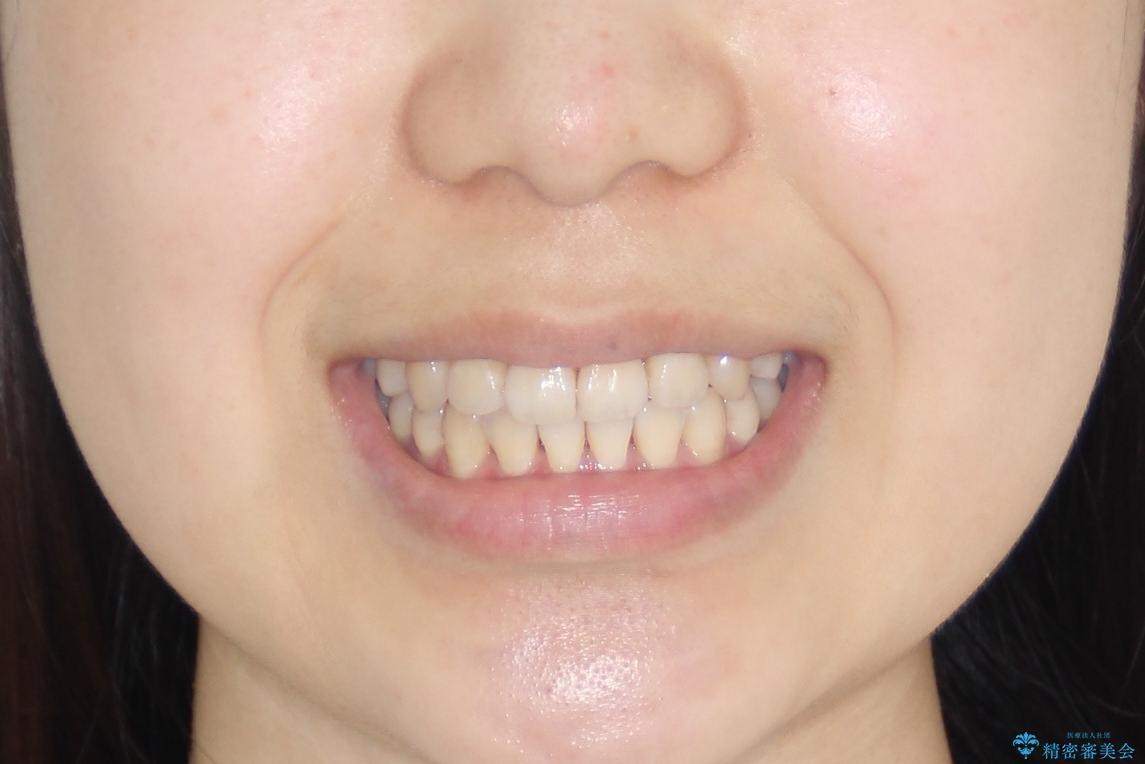 【インビザライン】前歯の凸凹をなおしたいの治療後(顔貌)