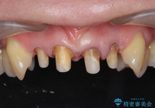 [前歯のグラつき] 根本的な前歯の審美治療を希望の治療中