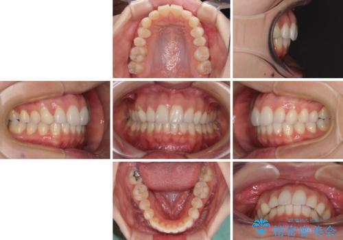 狭い上顎骨を拡大 急速拡大装置を併用したインビザライン矯正の治療後