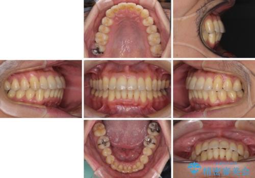 前歯のデコボコ ワイヤー装置での短期間治療の治療後