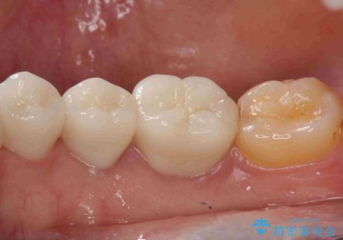 虫歯治療をしたい セラミック治療の治療後