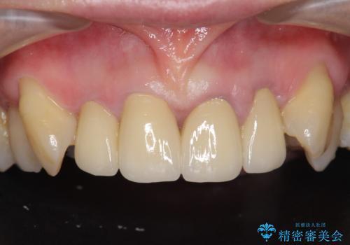 [前歯のグラつき] 根本的な前歯の審美治療を希望の症例 治療後