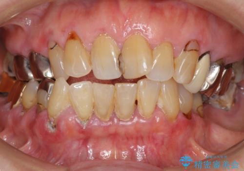 歯ぐきから血が出る、歯ぐきが腫れている 80代女性の症例 治療前