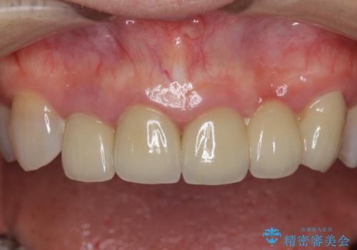 [歯ぐきの腫れを改善]  不適合なセラミッククラウンの治療前