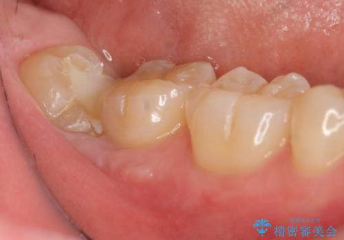 親知らずを起因とする虫歯治療の治療前