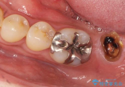 咬合平面を揃え、早期接触・干渉を防ぐ補綴治療の治療前