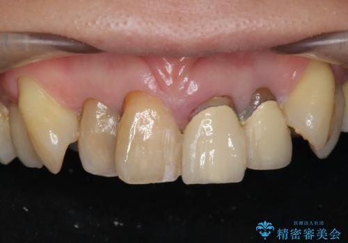 [前歯のグラつき] 根本的な前歯の審美治療を希望の症例 治療前
