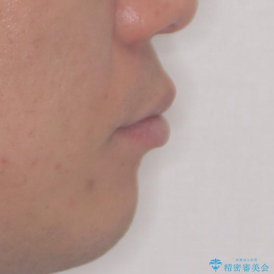 口が閉じにくい インビザラインによる矯正治療の治療前(顔貌)