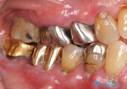 歯ぐきから血が出る、歯ぐきが腫れている 80代女性の治療前