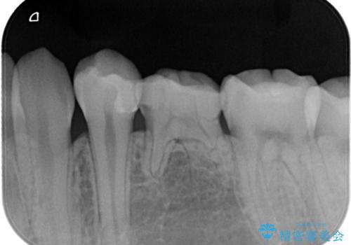【セラミックインレー】虫歯の治療の治療後