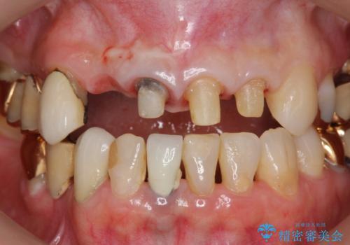 状況に応じた前歯の補綴計画の治療中