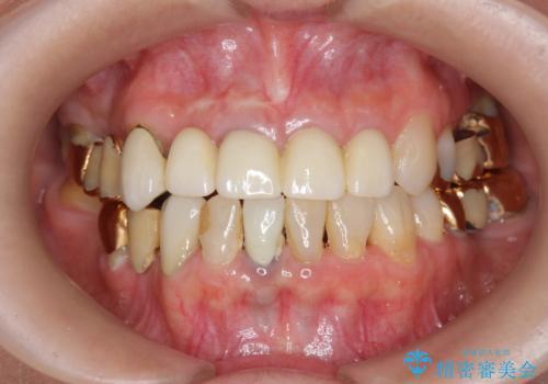 状況に応じた前歯の補綴計画の治療後