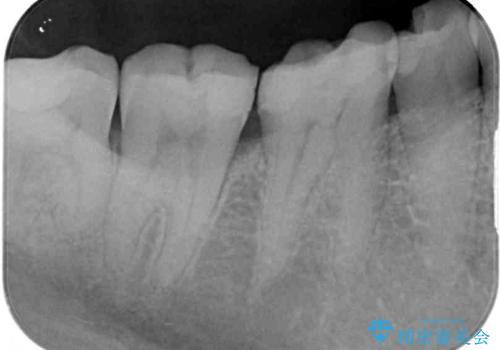 気がついたら歯が欠けていた 奥歯のセラミック補綴の治療前