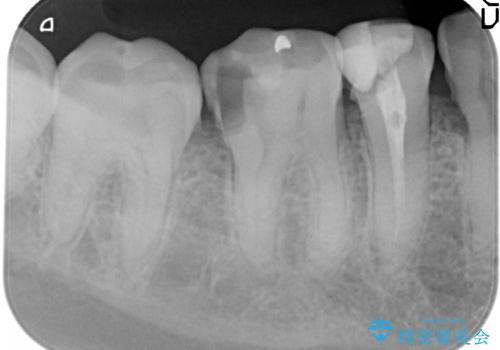 虫歯治療をしたい セラミック治療の治療前
