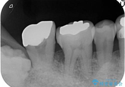 骨を再生させて歯周病を治す 再生療法 50代男性の治療前