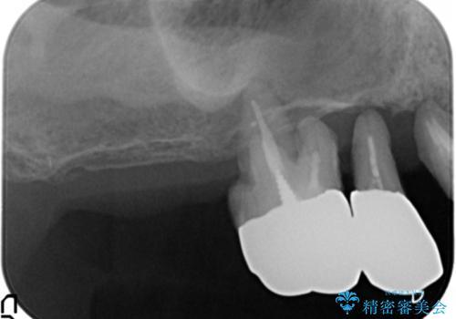 歯がぐらぐら 上顎洞底挙上術を併用した奥歯のインプラント 50代男性の治療前