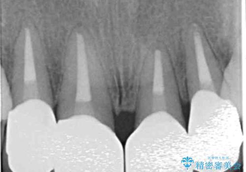 [前歯のグラつき] 根本的な前歯の審美治療を希望の治療後