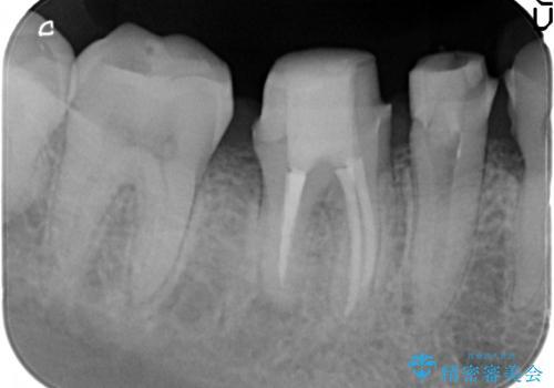 虫歯治療をしたい セラミック治療の治療中