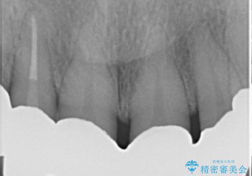 奥歯がないまま過ごしていたら前歯もぐらぐらしてきた 60代女性の治療後