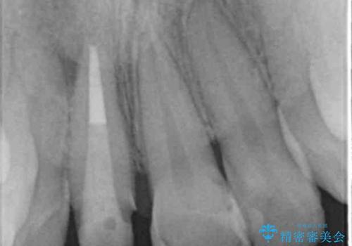 [前歯の変色] 前歯の見た目を改善したいの治療中