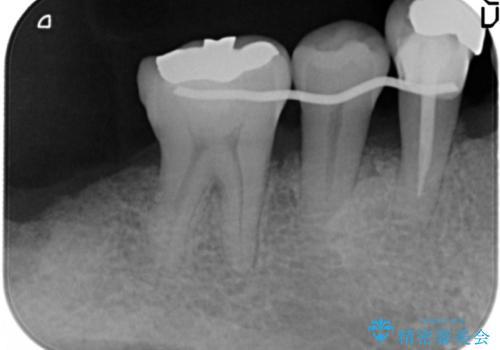 骨を再生させて歯周病を治す 再生療法 50代男性の治療中