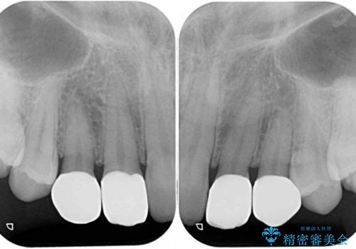 前歯の奇形歯 オールセラミッククラウンによる審美歯科治療の治療後