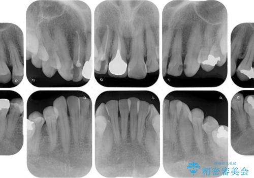 歯並びと目立つ金属を治したい 総合歯科治療の治療前