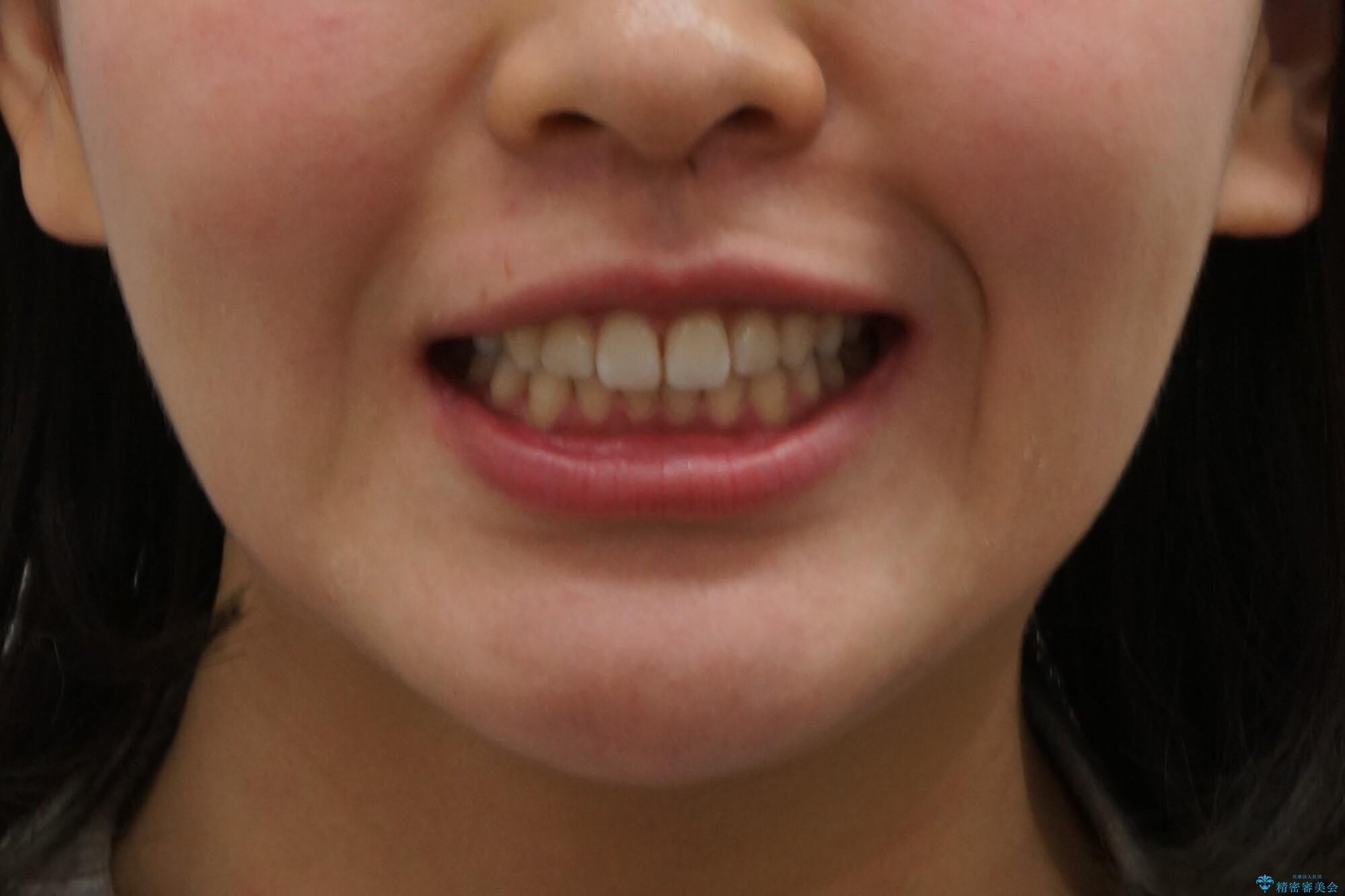 出っ歯 インビザラインで歯を抜かない治療の治療後(顔貌)
