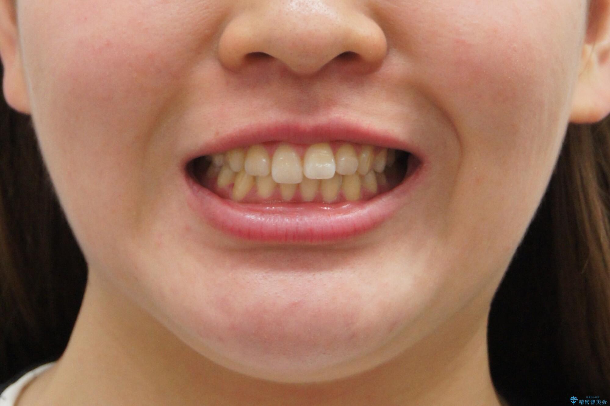 出っ歯 インビザラインで歯を抜かない治療の治療前(顔貌)