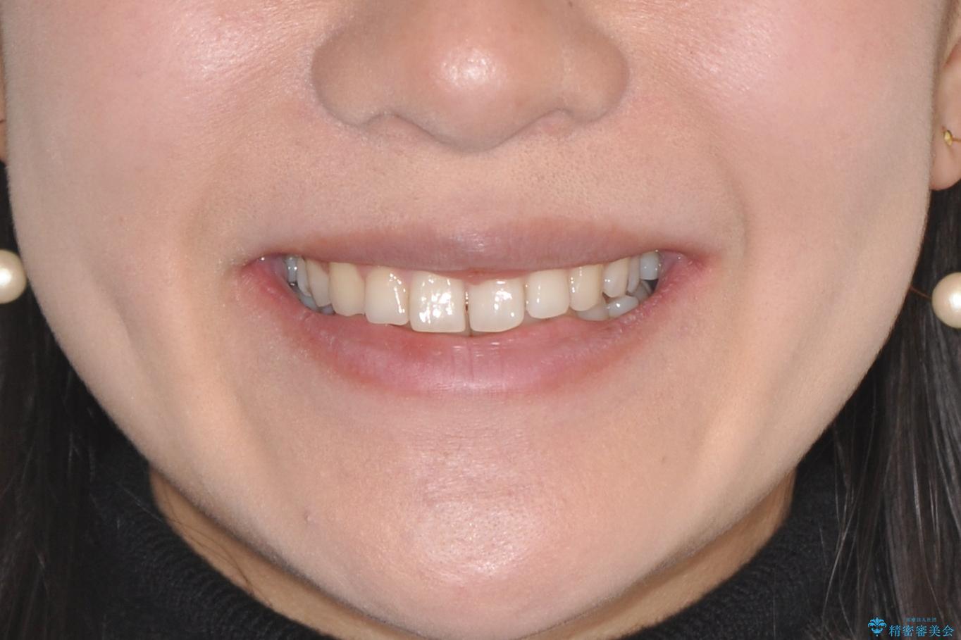 【インビザライン】前歯のガタガタを綺麗にしたい。の治療前(顔貌)