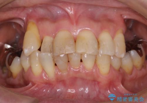 奥歯がないまま過ごしていたら前歯もぐらぐらしてきた 60代女性の症例 治療前