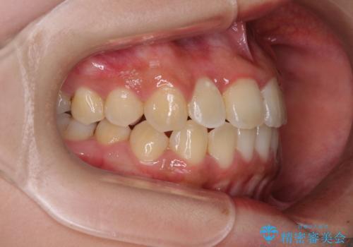 前後に重なった前歯 ワイヤー装置と急速拡大装置を併用したインビザライン矯正の治療後