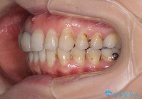 歯並びと目立つ金属を治したい 総合歯科治療の治療中