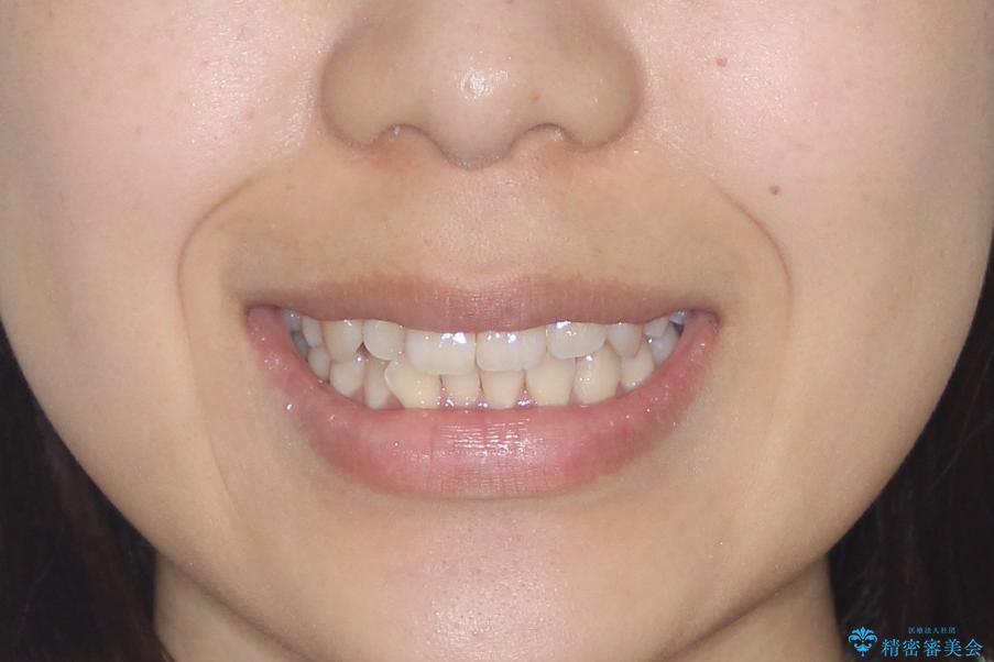 【インビザライン】前歯の凸凹をなおしたいの治療前(顔貌)