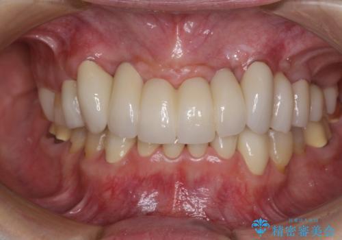 出血が止まらない インプラント補綴を用いた歯周病治療の症例 治療後