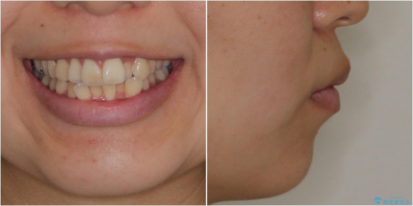 スッキリとした口元へ 出っ歯の抜歯矯正の治療前(顔貌)