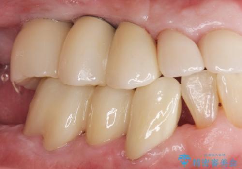 歯がぐらぐら 上顎洞底挙上術を併用した奥歯のインプラント 50代男性の症例 治療後