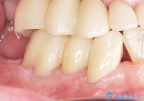 骨を再生させて歯周病を治す 再生療法 50代男性の症例 治療後