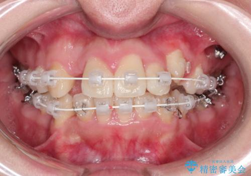 犬歯が変な位置にある 抜歯矯正により正しい位置への治療中