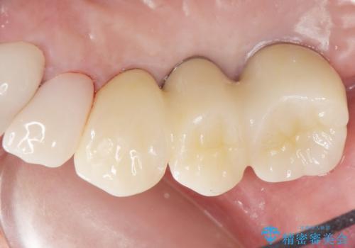 歯がぐらぐら 上顎洞底挙上術を併用した奥歯のインプラント 50代男性の治療後
