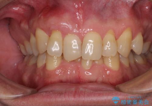 歯根が露出している歯の歯肉移植 根面被覆術の治療後