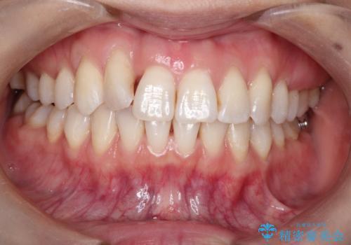 インビザラインによる矯正治療 前歯を整った歯並びへの治療中